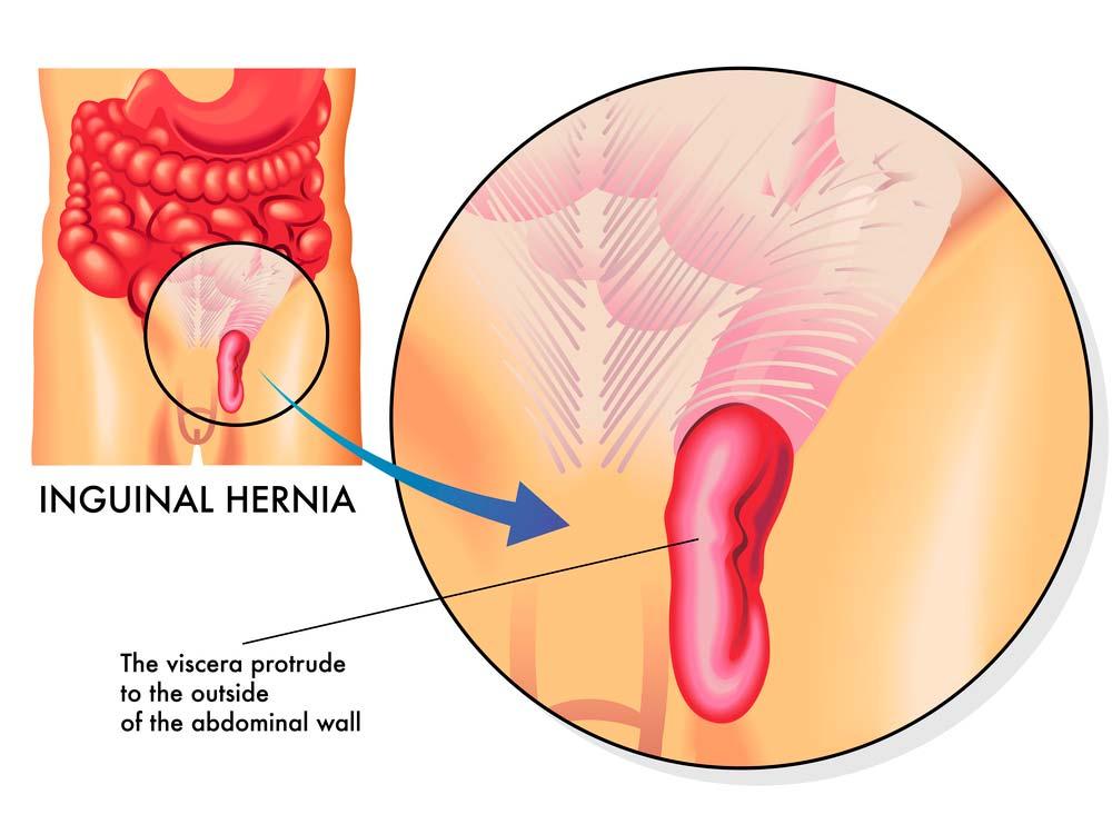 Cirugía de Hernia Inguinal en Monterrey
